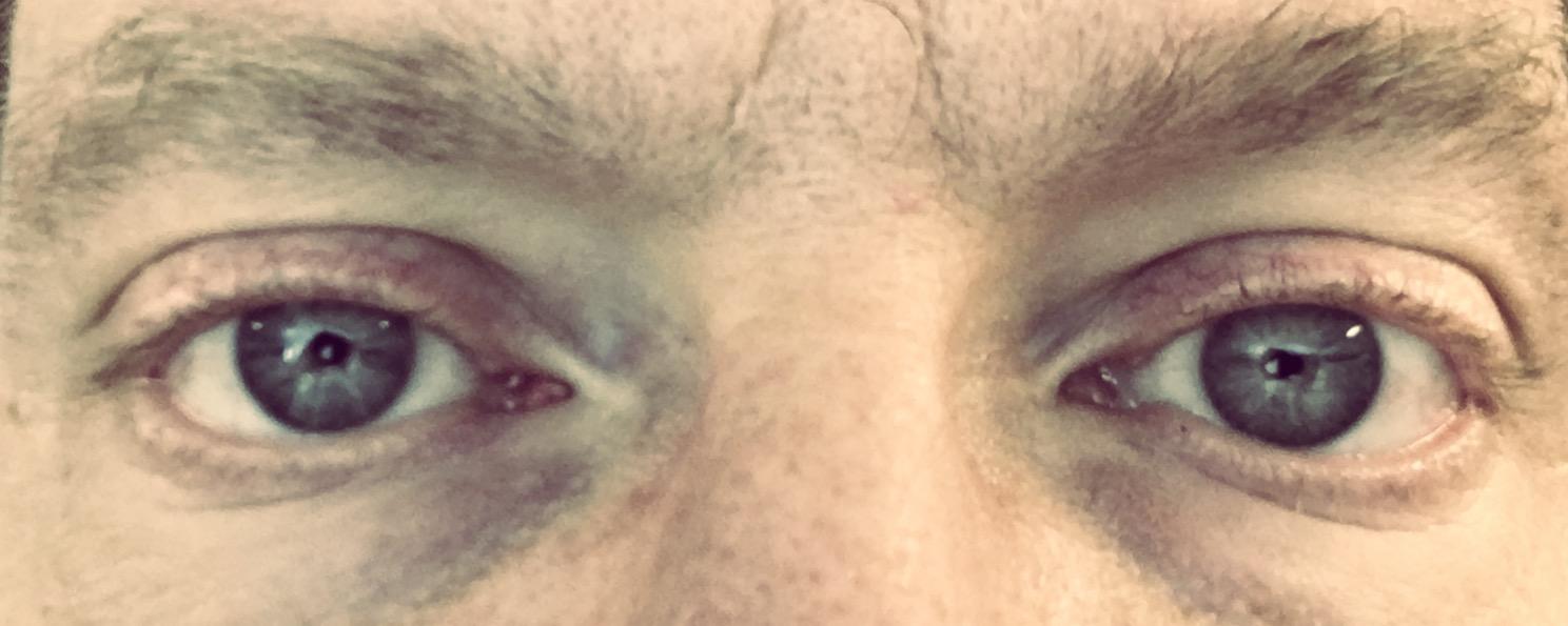 Von Null auf Augenhoehe